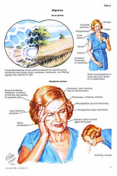 В терапии мигрени должны